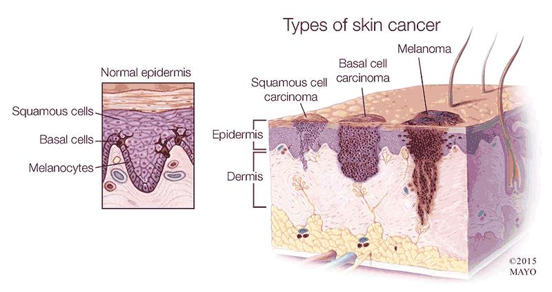 سرطان پوست-غیرتهاجمی